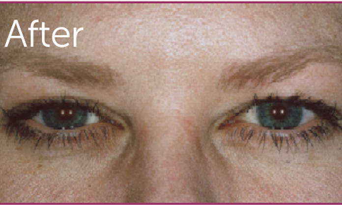 Botox-Cosmetic-After-Image