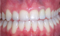 Implant-Crowns-and-Veneers-After-Image