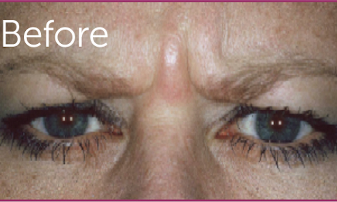 Botox-Cosmetic-Before-Image