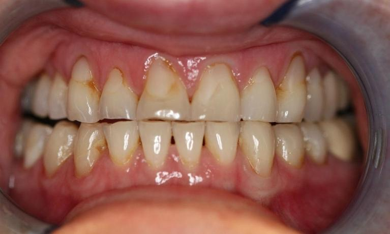 Porcelain-Fused-to-Zirconium-Crowns-Before-Image