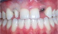 Implant-Crowns-and-Veneers-Before-Image